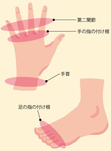 の 痛い 付け根 親指 が の 病院 足